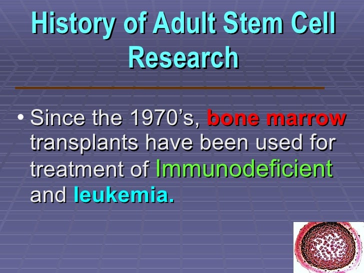 history of stem cell research Home us politics world business tech health motto entertainment science newsfeed living sports history the time vault federal funding for stem cell research.