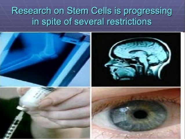What are Stem Cells • Ability to differentiate • Ability to regenerate
