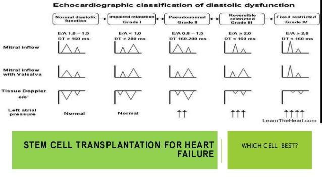 heart diseases and stem cell transplantation Stem cells strengthen the heart  the research results are not only relevant for the development of stem cell transplantation as a  autoimmune diseases more.
