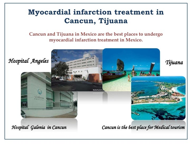 Stem Cell Therapy In Mexico Cancun Amp Tijuana At Affordable Cost