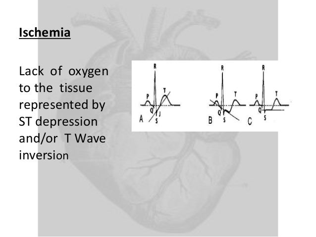 Myocardial ischemia the lack of oxygen essay