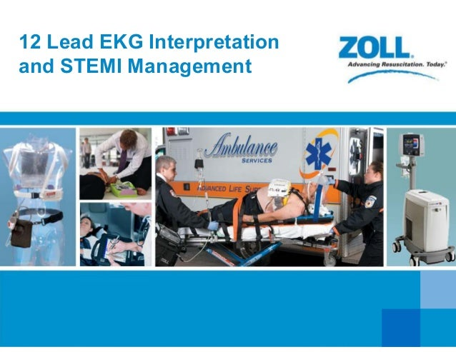 12 Lead EKG Interpretation and STEMI Management