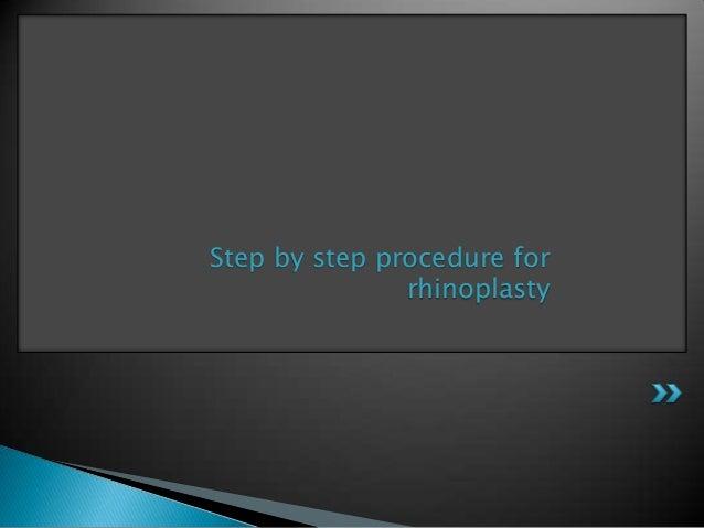 Step by step procedure for               rhinoplasty