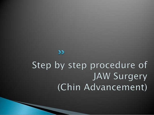 Procedure for JAW Surgery   Step 1                            Bone Cutting
