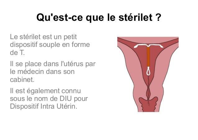 moyen de contraception femme