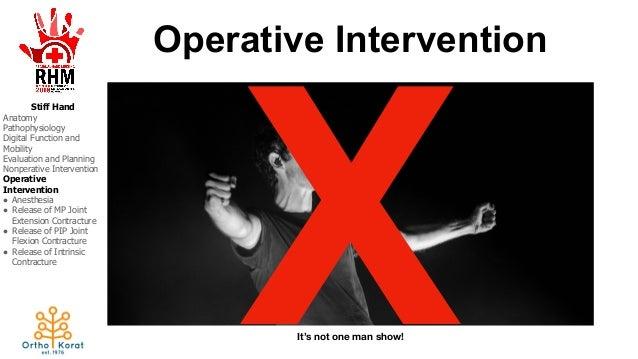 Stiff Intervention