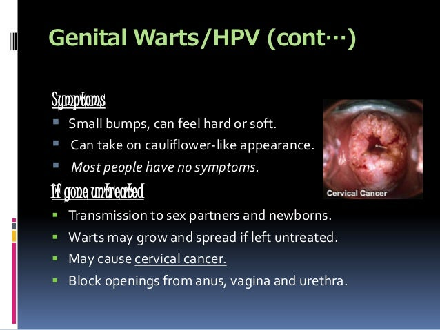 are genital warts for life