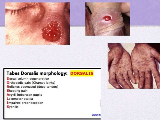How is syphilis diagnosed and treated? • Cardiolipin antibody- detectable in primary syphilis. Becomes –ve after tx • Trep...