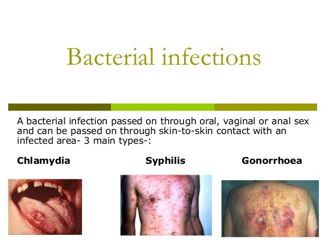 Anal bacterial infection