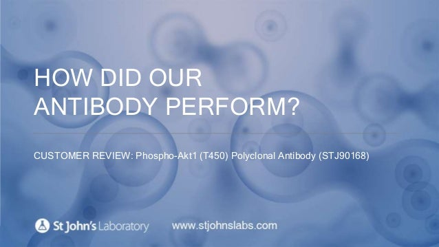 HOW DID OUR ANTIBODY PERFORM? CUSTOMER REVIEW: Phospho-Akt1 (T450) Polyclonal Antibody (STJ90168)