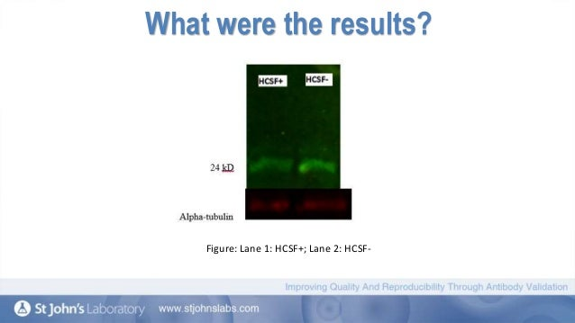 Tet  Antibody   Methylcytosine dioxygenase TET  Antibody Review Page Identification of SF  ASF protein using SF  ASF monoclonal mouse antibody via western blot