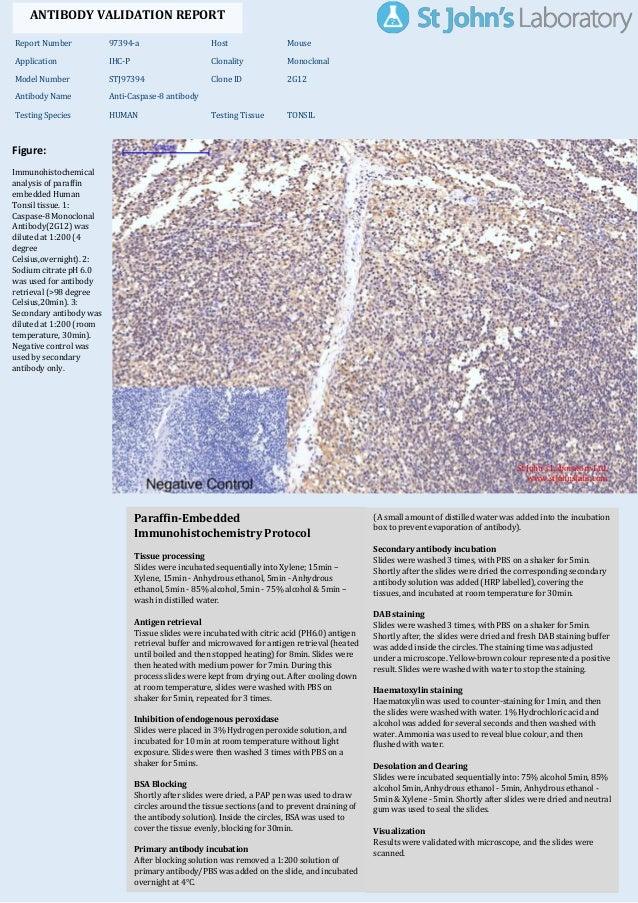 Figure: Immunohistochemical analysis of paraffin embedded Human Tonsil tissue. 1: Caspase-8 Monoclonal Antibody(2G12) was ...