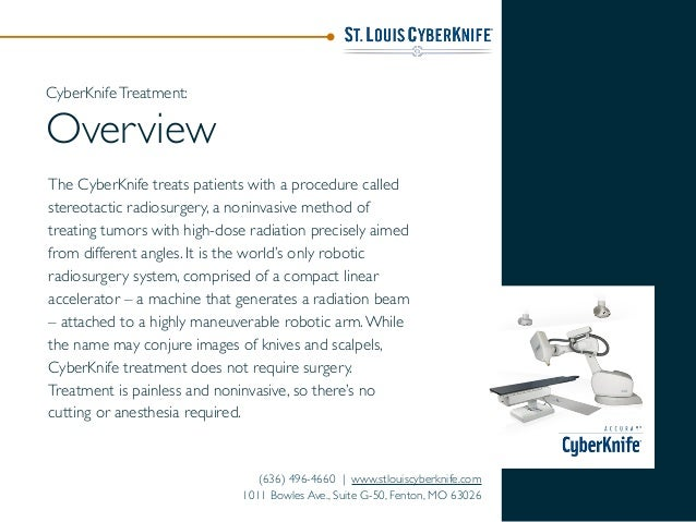 The CyberKnife treats patients with a procedure called stereotactic radiosurgery, a noninvasive method of treating tumors ...