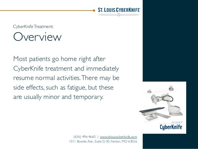 Most patients go home right after CyberKnife treatment and immediately resume normal activities.There may be side effects,...