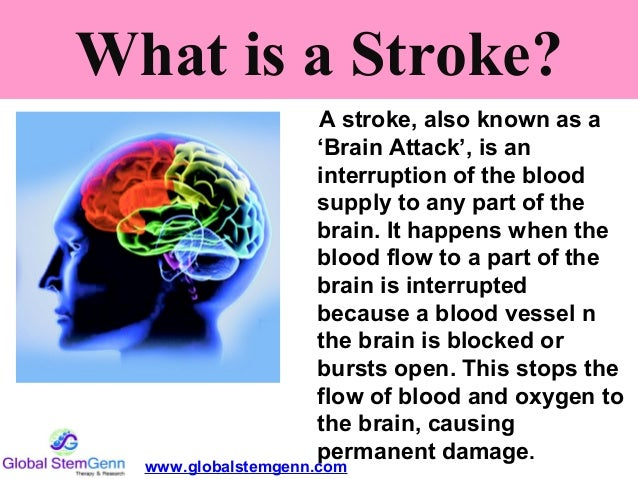 Stem Cell Therapy Has A Promise In Stroke Dr Sharda Jain