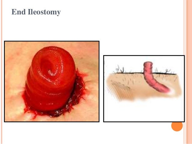 End Colostomy Stoma