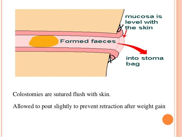 hartmann procedure stoma