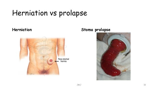 excessive alcohol consumption essay