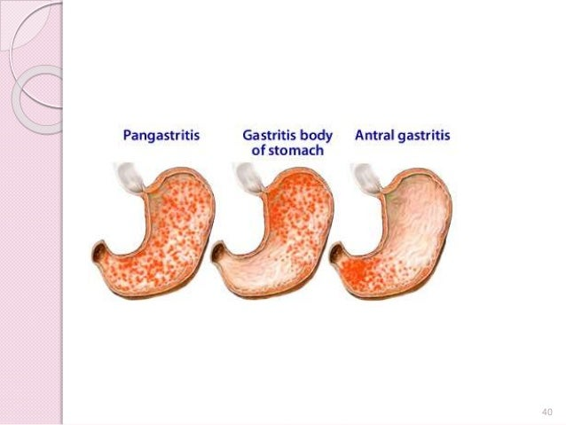 o gastritis bei kindern colon cancer.jpg