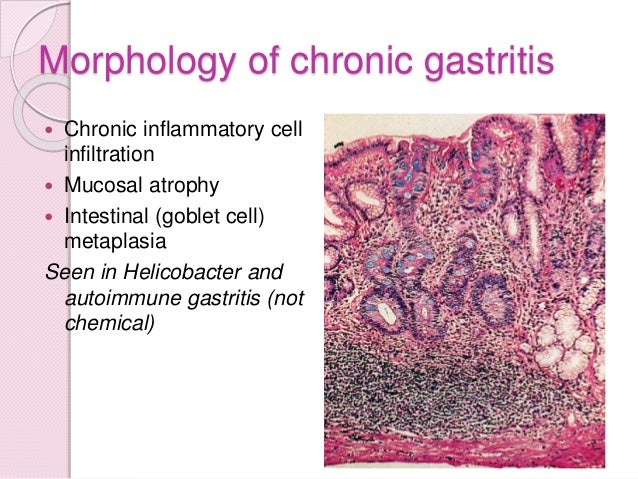 Stomach Pathology Lecture