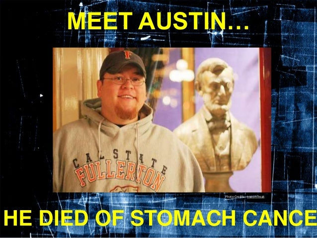 MEET AUSTIN… HE DIED OF STOMACH CANCE Photo Credits: trazomfreak