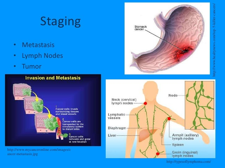 Stomach (Gastric) Cancer