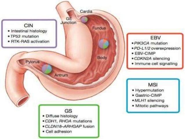 Surgical detail • Patient underwent Exploratory Laparotomy + Radical Distal Gastrectomy + Gastrojejunostomy + Feeding Jeju...
