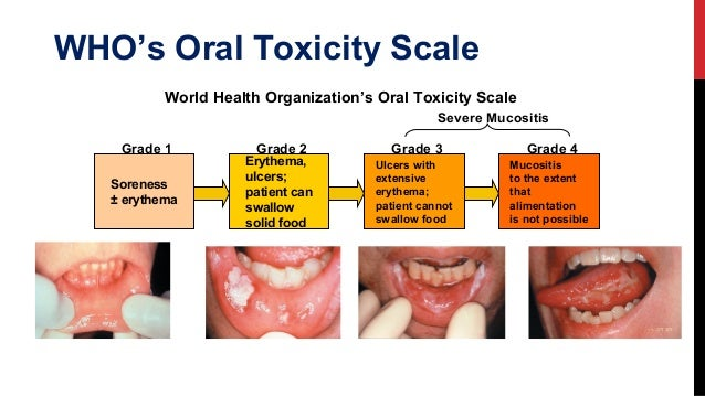 Stomatitis In Oncology