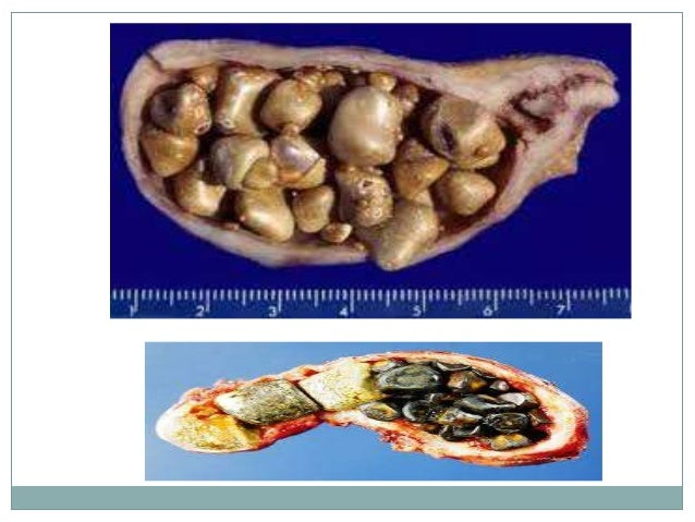 Stones Of The Gall Bladder