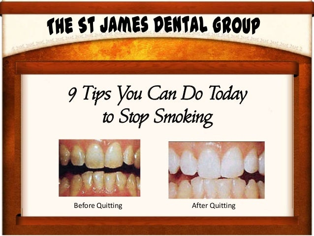 9 Steps You Can Do Today to Quit Smoking