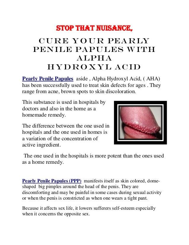 Away penile papules go Pearly penile
