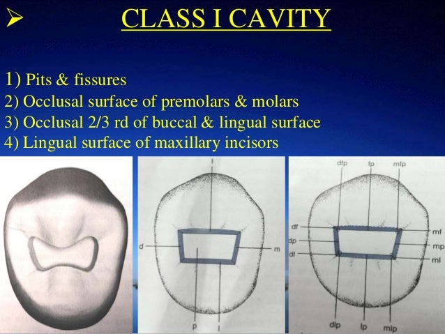 Principles of cavity preparation by Dr  rupali