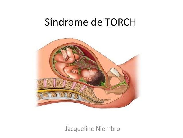 Síndrome de TORCH   Jacqueline Niembro