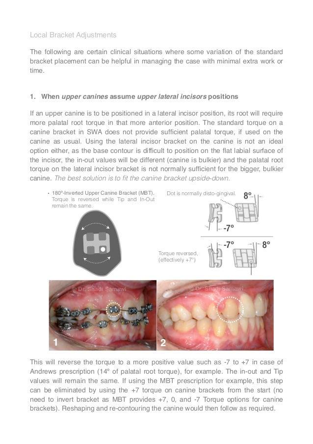 Straight-Wire Orthodontics (1st Edition) - 2014 - Shadi Samawi