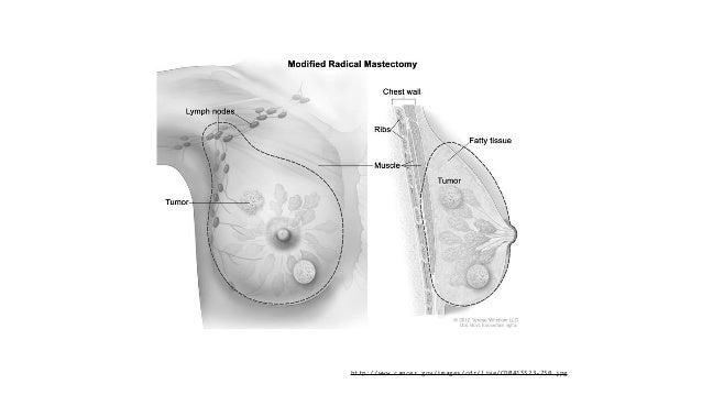 http://www.cancer.gov/images/cdr/live/CDR415523-750.jpg