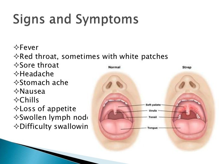 Strep throat symptoms for adults