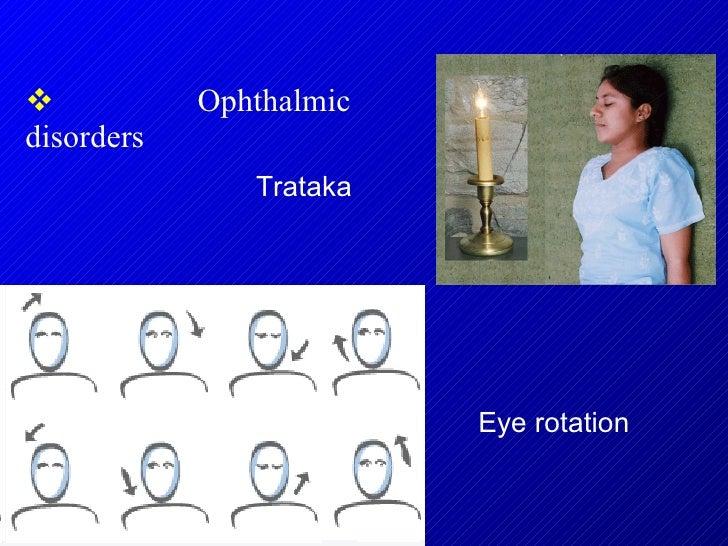<ul><li>Ophthalmic disorders  </li></ul>Trataka Eye rotation