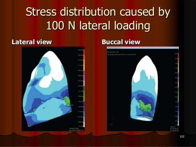 Stress distribution caused by100 N lateral loadingLateral view Buccal view102