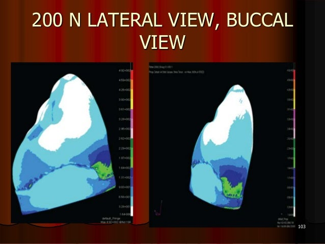 200 N LATERAL VIEW, BUCCALVIEW103