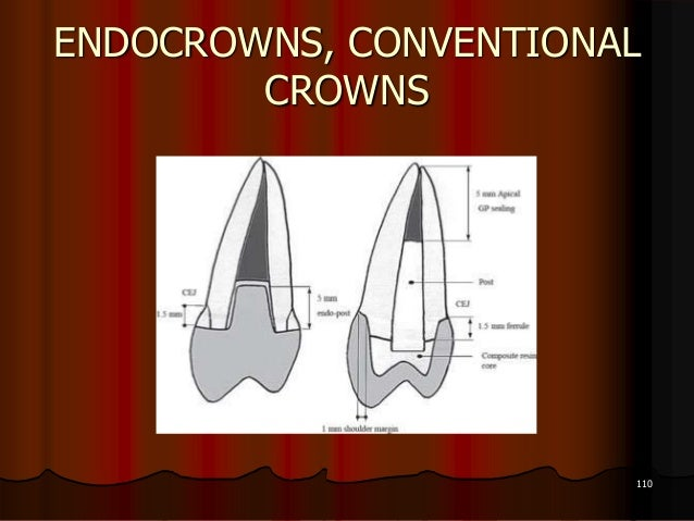 ENDOCROWNS, CONVENTIONALCROWNS110