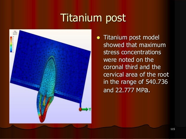 Titanium post Titanium post modelshowed that maximumstress concentrationswere noted on thecoronal third and thecervical a...
