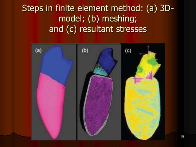 Steps in finite element method: (a) 3D-model; (b) meshing;and (c) resultant stresses51