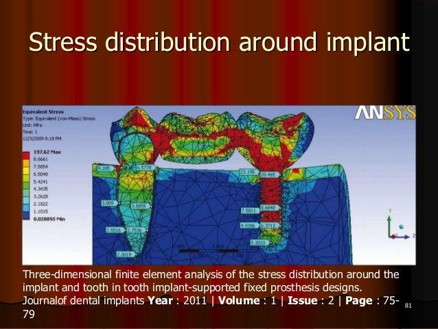Stress distribution around implant81Three-dimensional finite element analysis of the stress distribution around theimplant...
