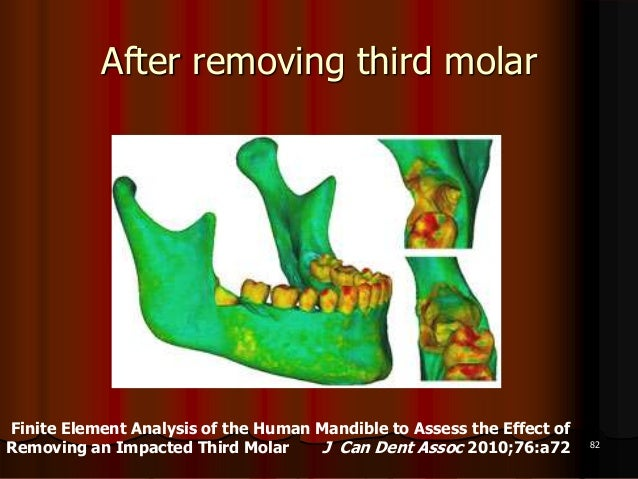 After removing third molar82Finite Element Analysis of the Human Mandible to Assess the Effect ofRemoving an Impacted Thir...