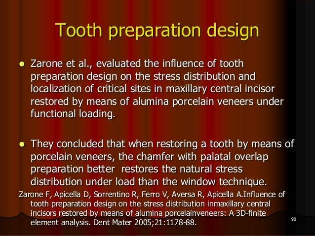 Tooth preparation design Zarone et al., evaluated the influence of toothpreparation design on the stress distribution and...
