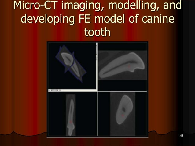Micro-CT imaging, modelling, anddeveloping FE model of caninetooth98