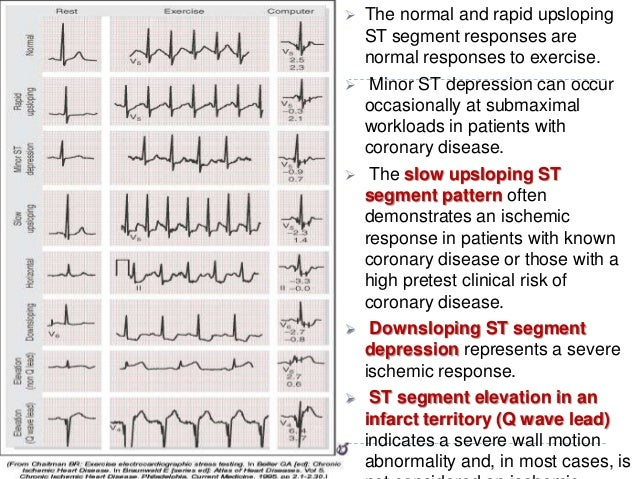37  The normal and rapid upsloping ST segment responses are normal responses to exercise.  Minor ST depression can occur...