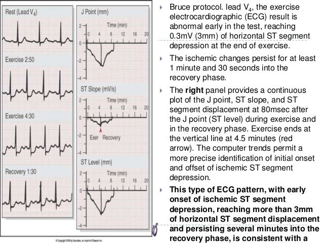 38  Bruce protocol. lead V4, the exercise electrocardiographic (ECG) result is abnormal early in the test, reaching 0.3mV...