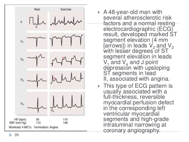 39  A 48-year-old man with several atherosclerotic risk factors and a normal resting electrocardiographic (ECG) result, d...