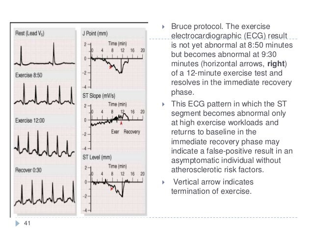 41  Bruce protocol. The exercise electrocardiographic (ECG) result is not yet abnormal at 8:50 minutes but becomes abnorm...